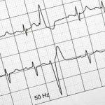 Bloc Papel ECG 100*150*180.Cardioline ECG100(+)