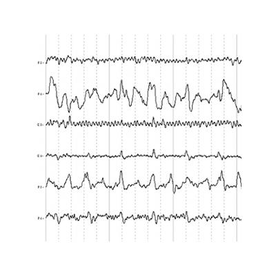 EEG Blocs Térmicos